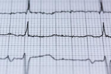 photo of cardiograph